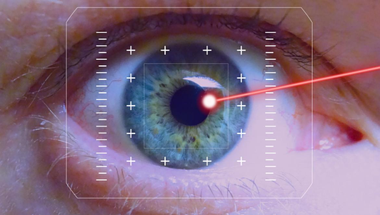 איזה טכנולוגיה יש לטיפול לייזר בעיניים?